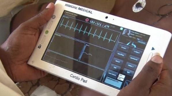 Cameroun : CardioPad pour les problèmes de cœur